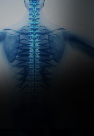 Spinal Cord <br />Stimulation